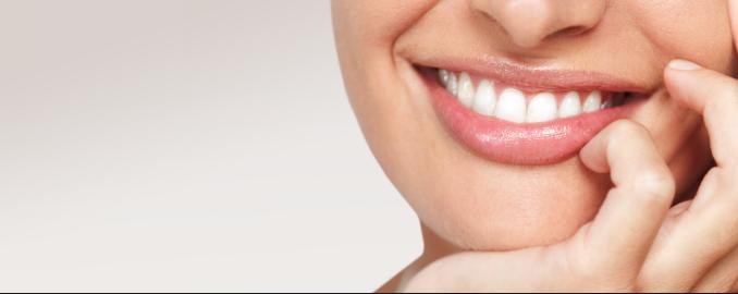 in chair teeth whitening
