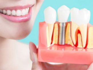 Dental implants South Yarra